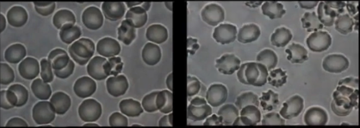 protect from graphene oxide EMF blood samples Live Call: Graphene and Graphene Oxide Basics