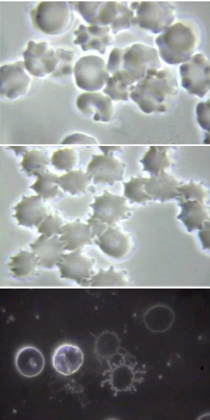spike protein blood cells graphene oxide covid Live Call: Graphene and Graphene Oxide Basics